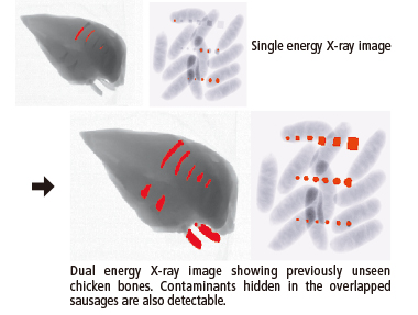 Dual energy X-ray Image
