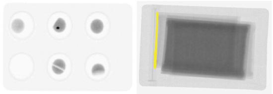 錠剤および経皮吸収型製剤のX線検査画像