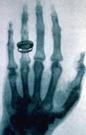 伦琴发现了X射线
