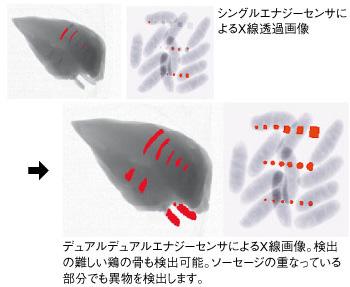 デュアルエナジーセンサによるX線画像