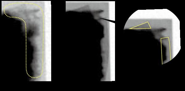 X線透過画像の画質が向上