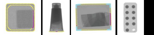 X線検査画像